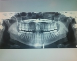 A panoramic x-ray of my teeth